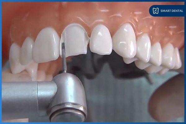 Bọc răng sứ 5