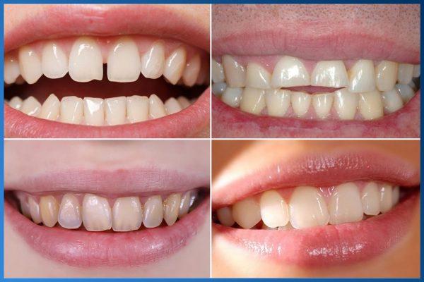 Bọc răng sứ 2