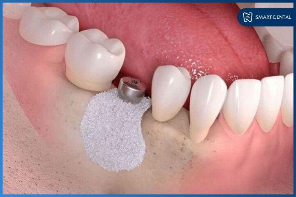 Ghép xương cấy implant 1