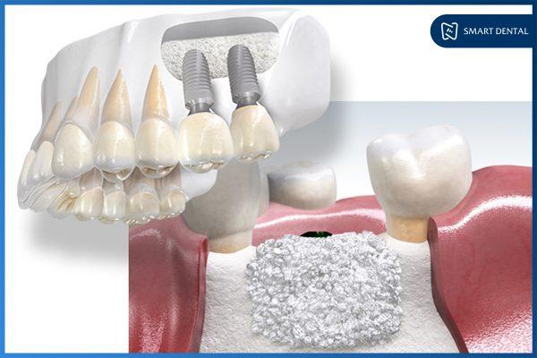 Ghép xương cấy implant 2