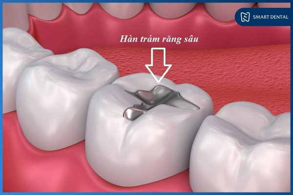 Hàn trám răng 1