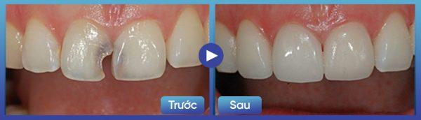 Hàn trám răng 2