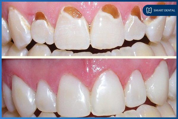 Hàn trám răng 4