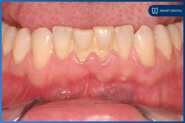 Lấy cao răng có đau không 1