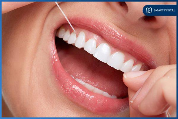 Hàm răng đẹp 7