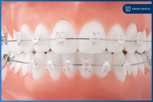 niềng răng mắc cài 6