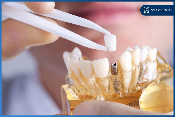 Phục hình răng sứ trên implant 1