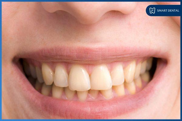 Tẩy trắng răng 2