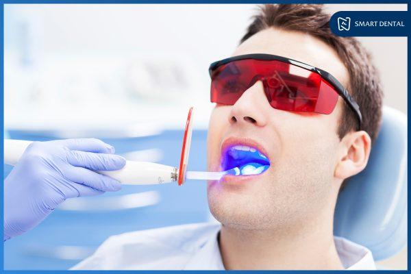 Hàm răng đẹp 8