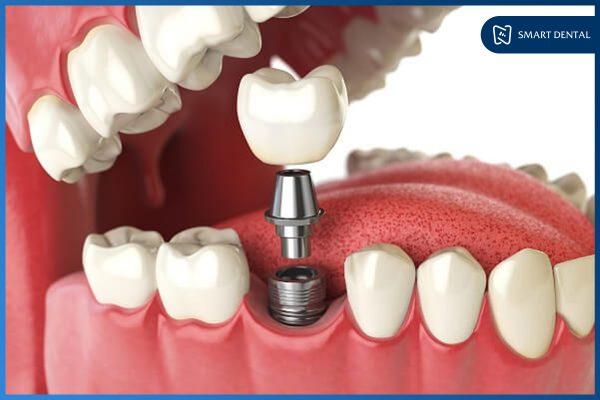 Trồng răng Implant có bền không 1
