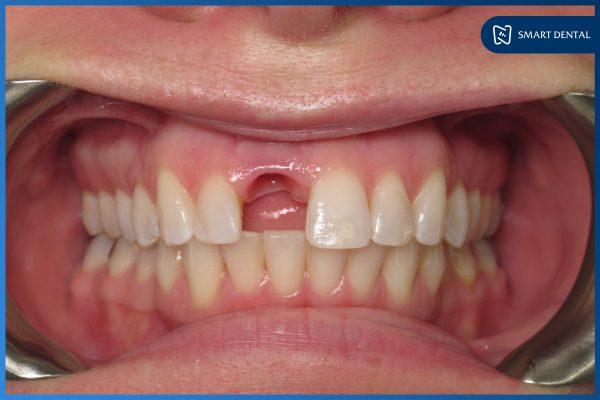 Trồng răng Implant có bền không 3