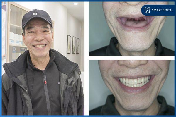 Trồng răng Implant có nguy hiểm không 3