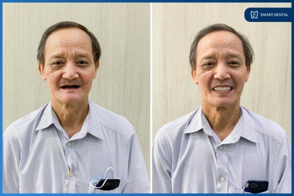 Chú Nguyễn Trung Kiên - Cấy ghép implant nguyên hàm All-on-4 2 hàm 11