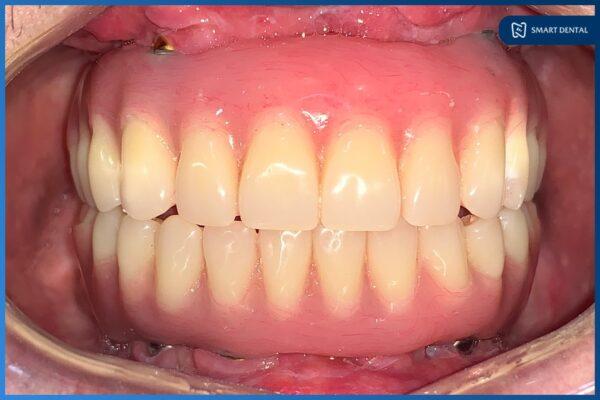 Chú Nguyễn Trung Kiên - Cấy ghép implant nguyên hàm All-on-4 2 hàm 10