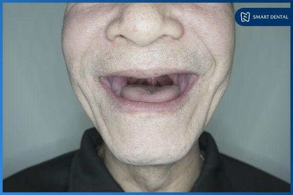 Có nên trồng răng Implant 4