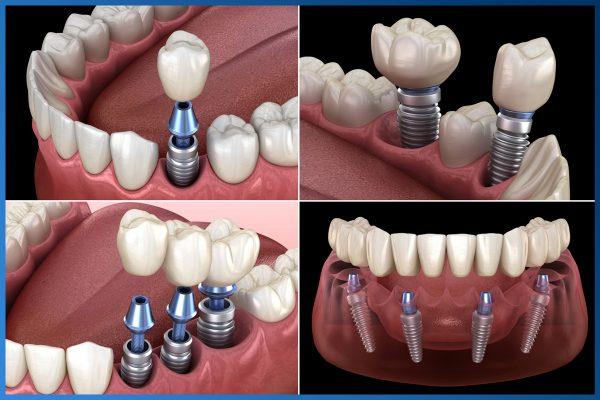 Có nên trồng răng Implant 6