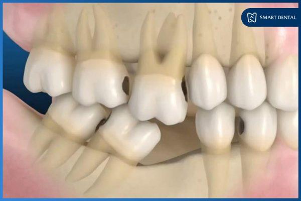 Có nên trồng răng Implant 8