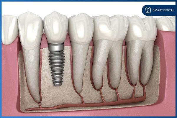 Trồng răng Implant có bền không 5