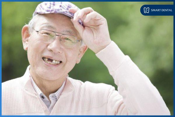Trồng răng Implant có bền không 2