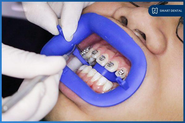 tác dụng của niềng răng 5