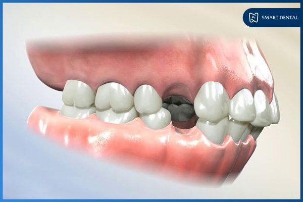 Niềng răng có đau không 4