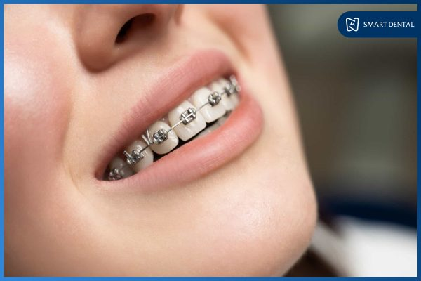 Hàm răng đẹp 10