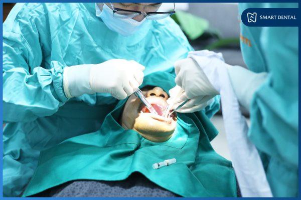 Trồng răng Implant có nguy hiểm không 4