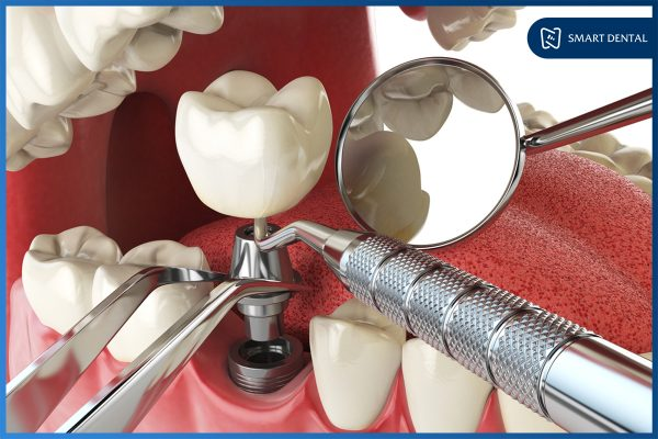 Trồng răng Implant có nguy hiểm không 1