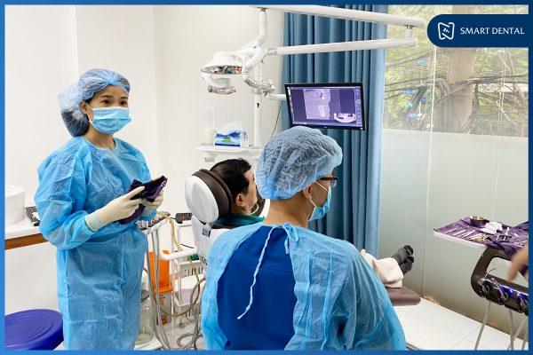 Quy trình cấy ghép Implant 2
