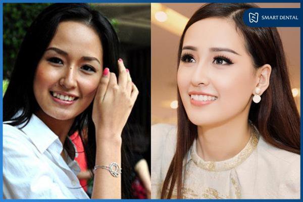 trước và sau khi niềng răng 4