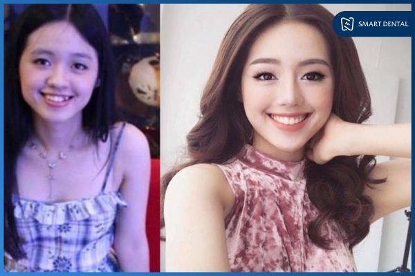 trước và sau khi niềng răng 5
