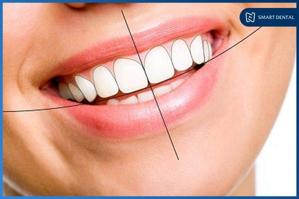 Hàm răng đẹp 2