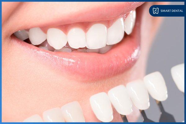 Hàm răng đẹp 9