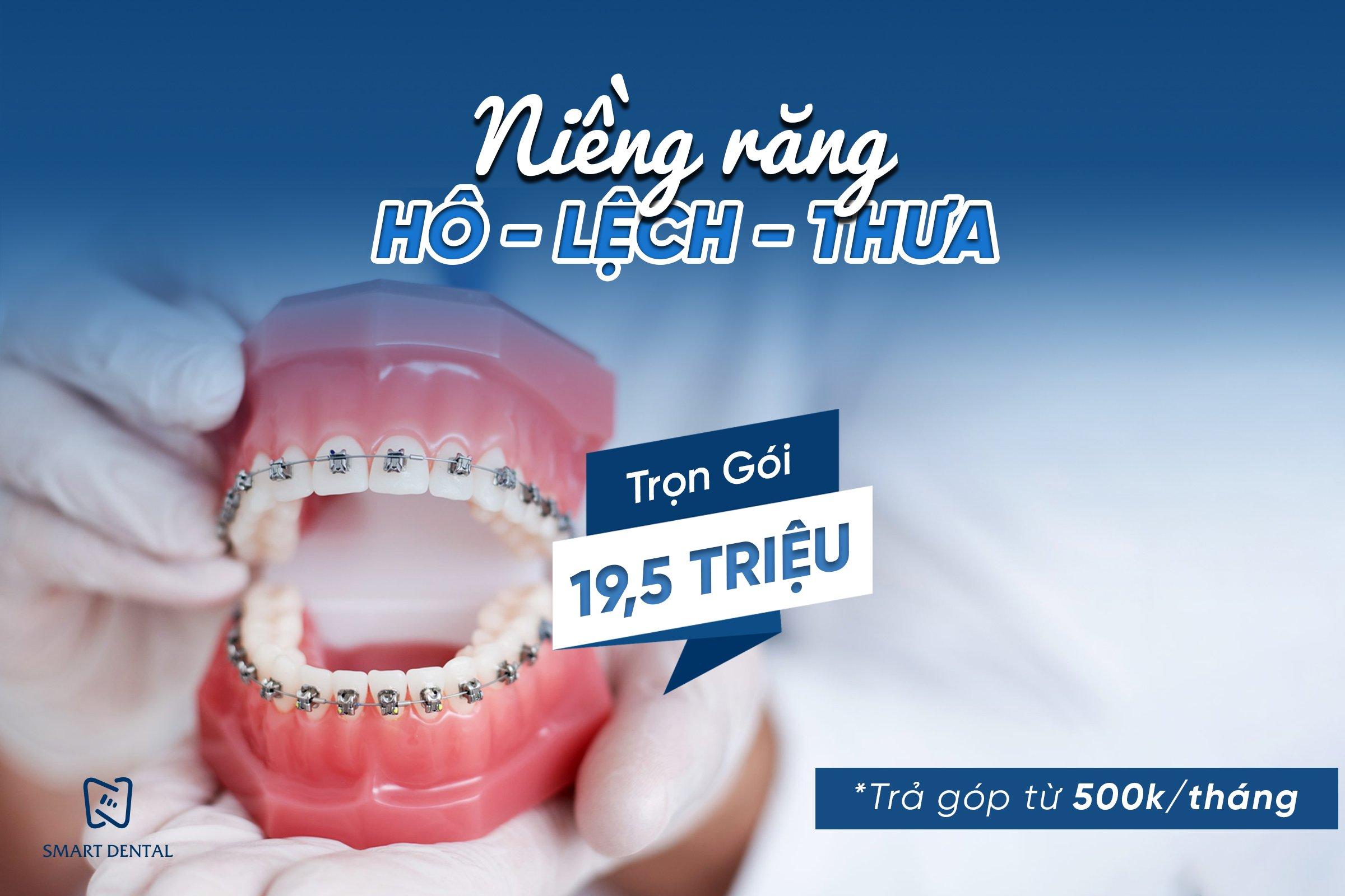 NIỀNG RĂNG HÔ - LỆCH -THƯA - MÓM - TRỌN GÓI 19,5 TRIỆU