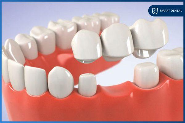 Trồng răng số 5 4
