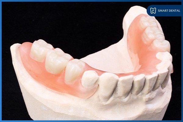 Trồng răng số 5 3