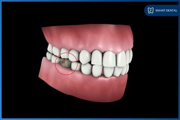Trồng răng số 5 2