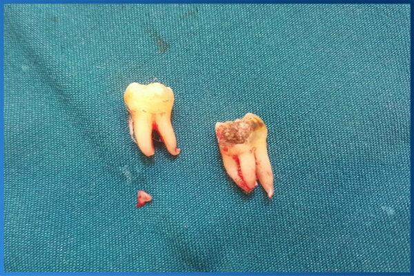 Nhổ răng khôn 2 cái 1 lần 1