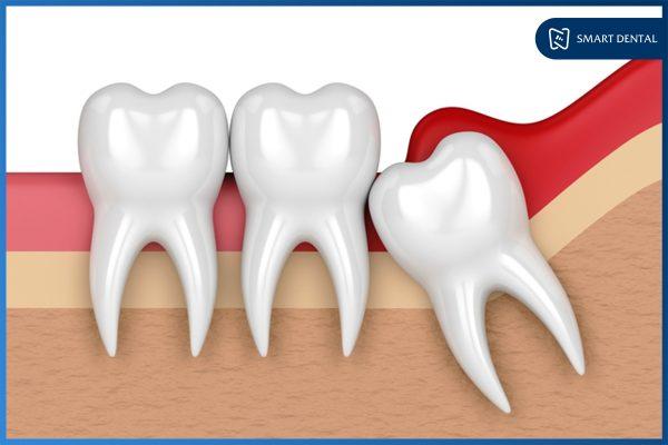 Răng khôn là răng số mấy 4