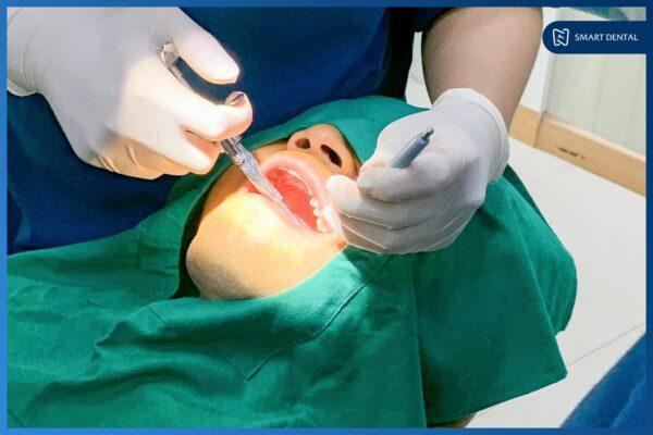 Răng khôn mọc thẳng 7