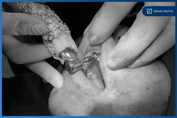 Khách hàng Trần Thùy Dương cấy 2 implant Hiossen Mỹ - Nha khoa Smart 6