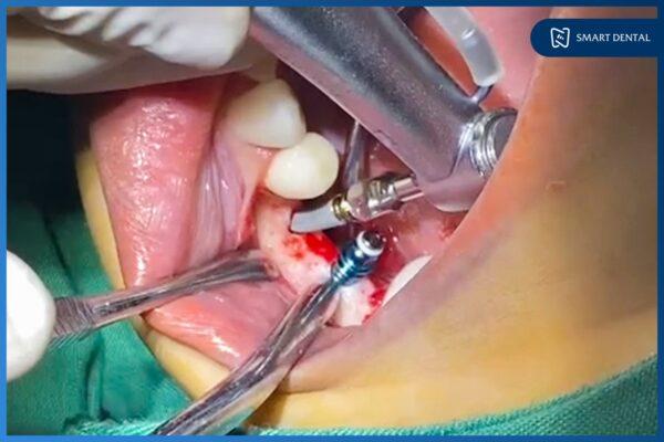25 Tuổi mất 2 răng hàm 10 năm, ăn uống khó khăn phải trồng răng Implant 6