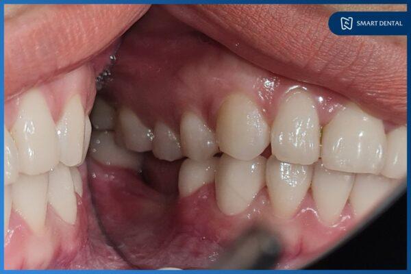 25 Tuổi mất 2 răng hàm 10 năm, ăn uống khó khăn phải trồng răng Implant 3