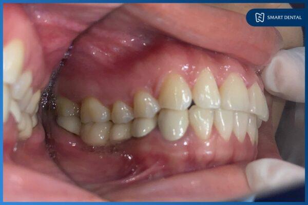 25 Tuổi mất 2 răng hàm 10 năm, ăn uống khó khăn phải trồng răng Implant 1