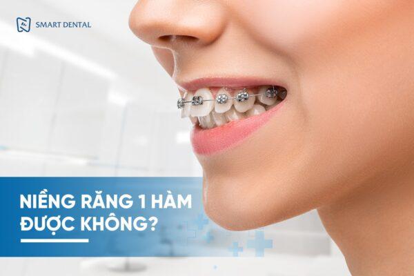 Niềng răng 1 hàm 1