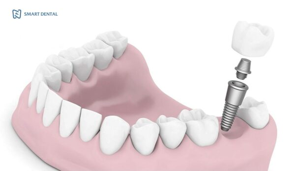 Trồng răng số 7 2